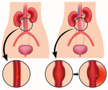Aneurysma břišní aorty